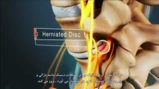 انیمیشن آموزشی جالب در مورد سیاتیک و دیسک کمر