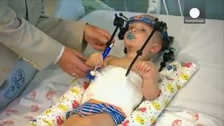 جراحی کم سابقه پیوند سر در استرالیا