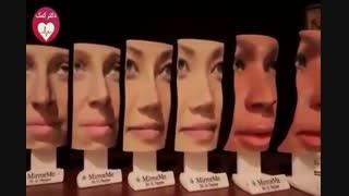 نمایش چهره بعد از عمل با پرینتر سه بعدی